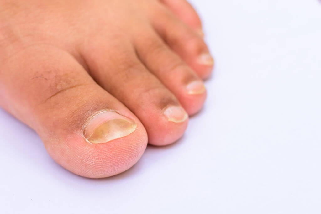 How To Treat Nail Infections