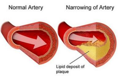 Cardio Clear 7- Working